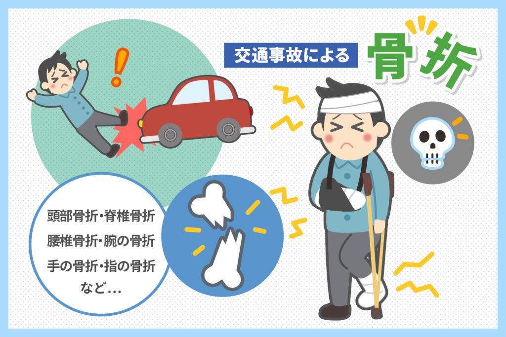 交通事故による骨折